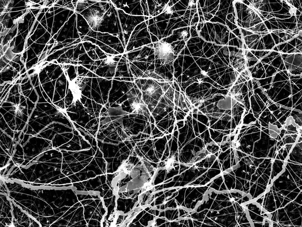 Inte av denna värld: forskare har skapat en artificiell hjärna gjorda av  silver och tvingade honom att lära sig | AllNews