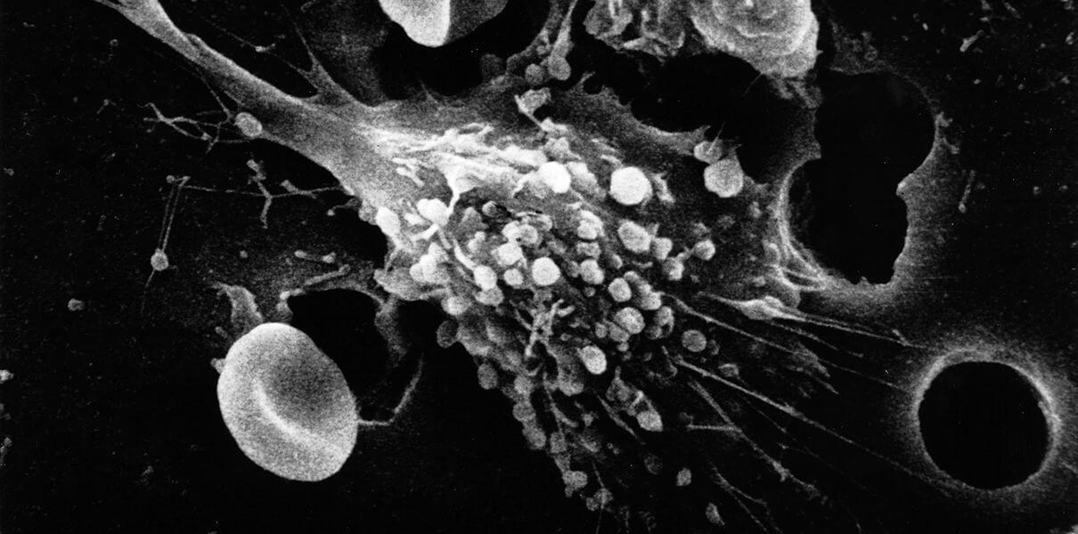 Найдены способные защитить от рака молекулы-самоубийцы