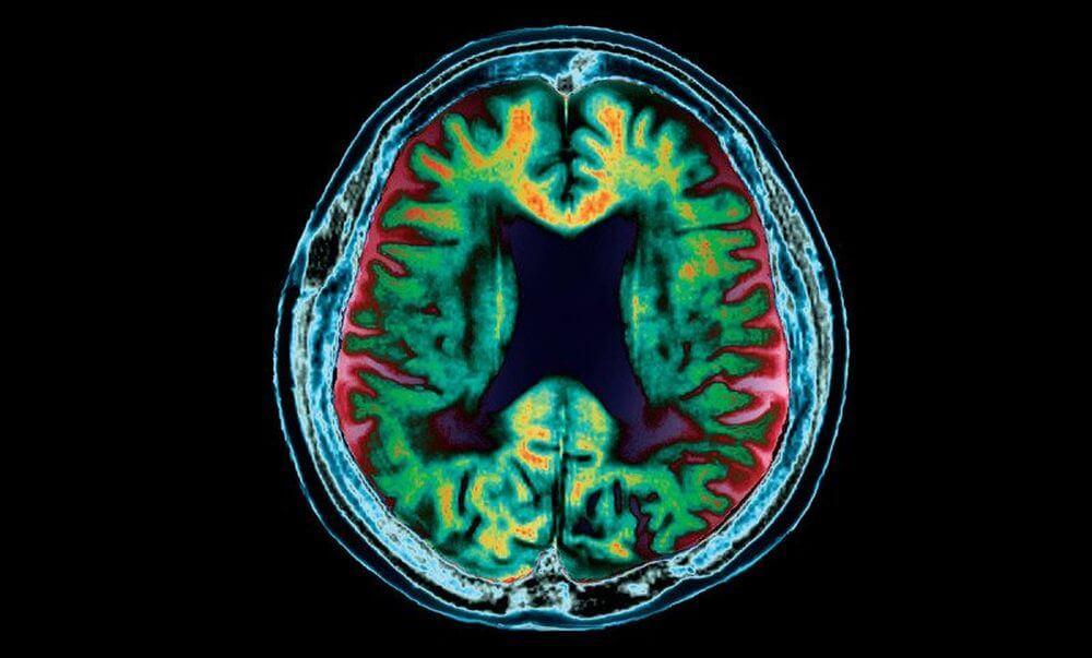 Болезнью Альцгеймера можно заразиться при переливании крови