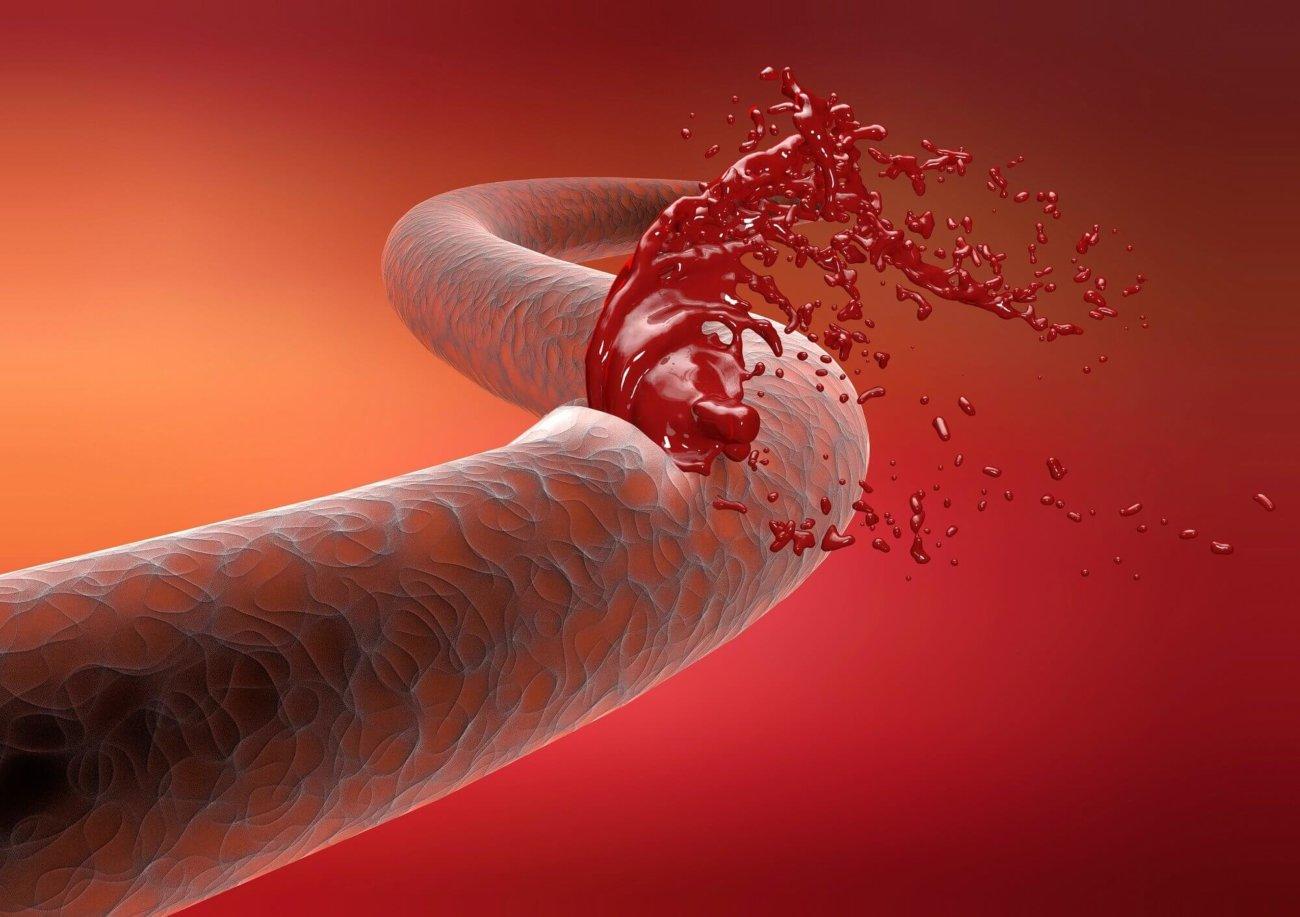 Британские медики испытали новое лекарство от гемофилии