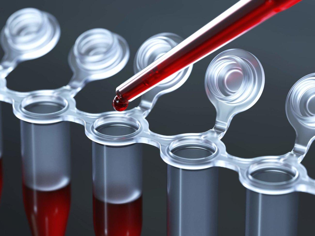 Изобретен новый вид анализа крови для диагностики рака