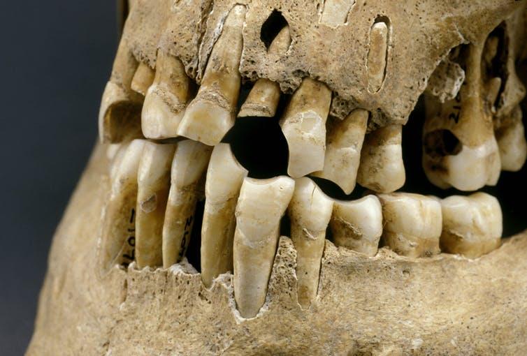 Сахар ни при чем: у наших древних предков были такие же проблемы с зубами (3 фото)