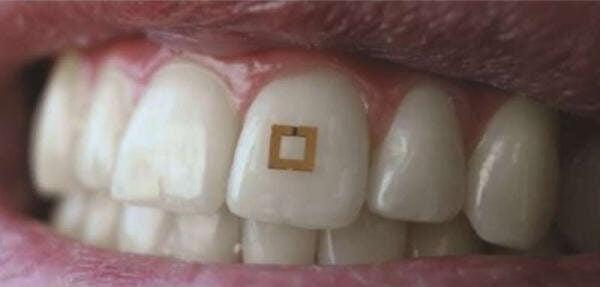 Ученые создали зубной датчик, который будет контролировать питание