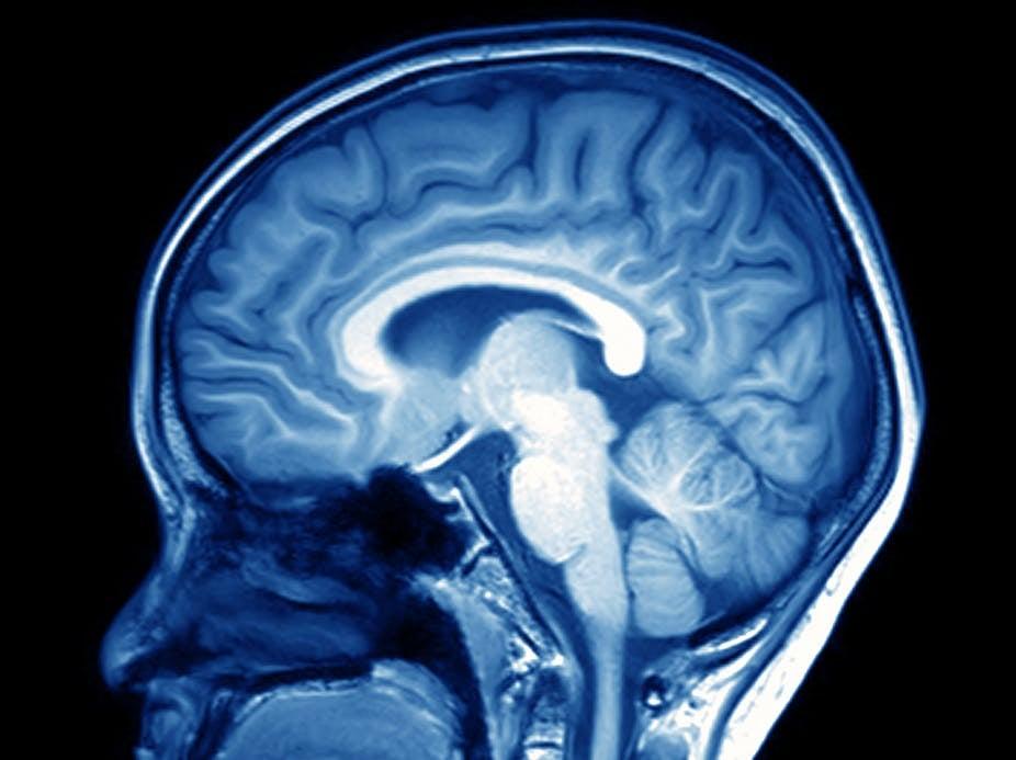 «Бабушка, а зачем тебе такой большой мозг?» И правда, зачем?