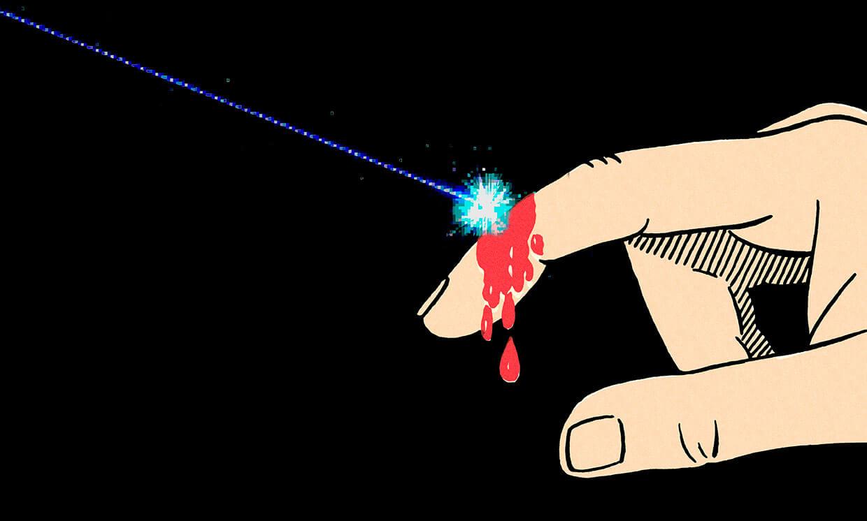 Ученые создают лазерный кожный регенератор из «Стартрека»