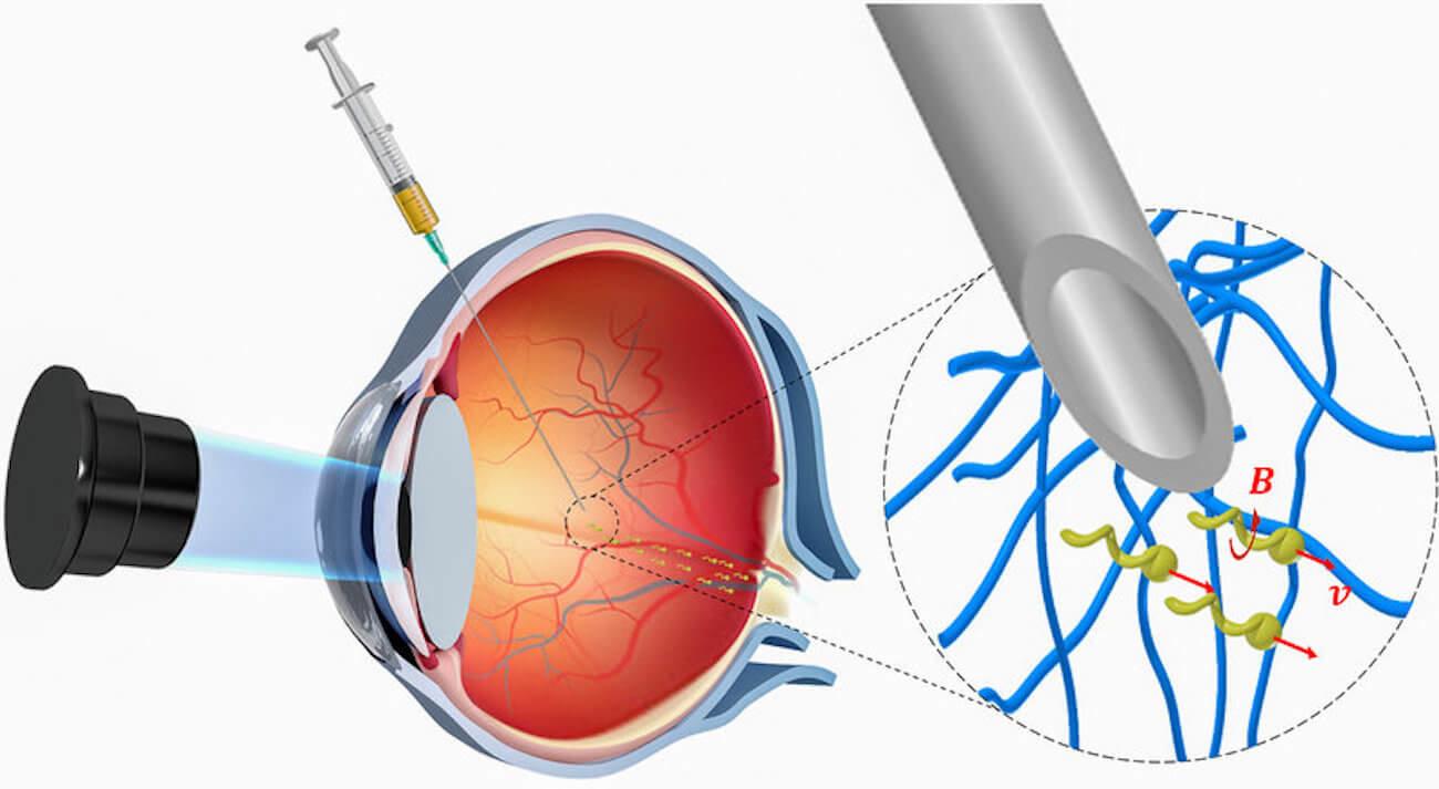 Нанороботов для лечения заболеваний впервые ввели в человеческий глаз