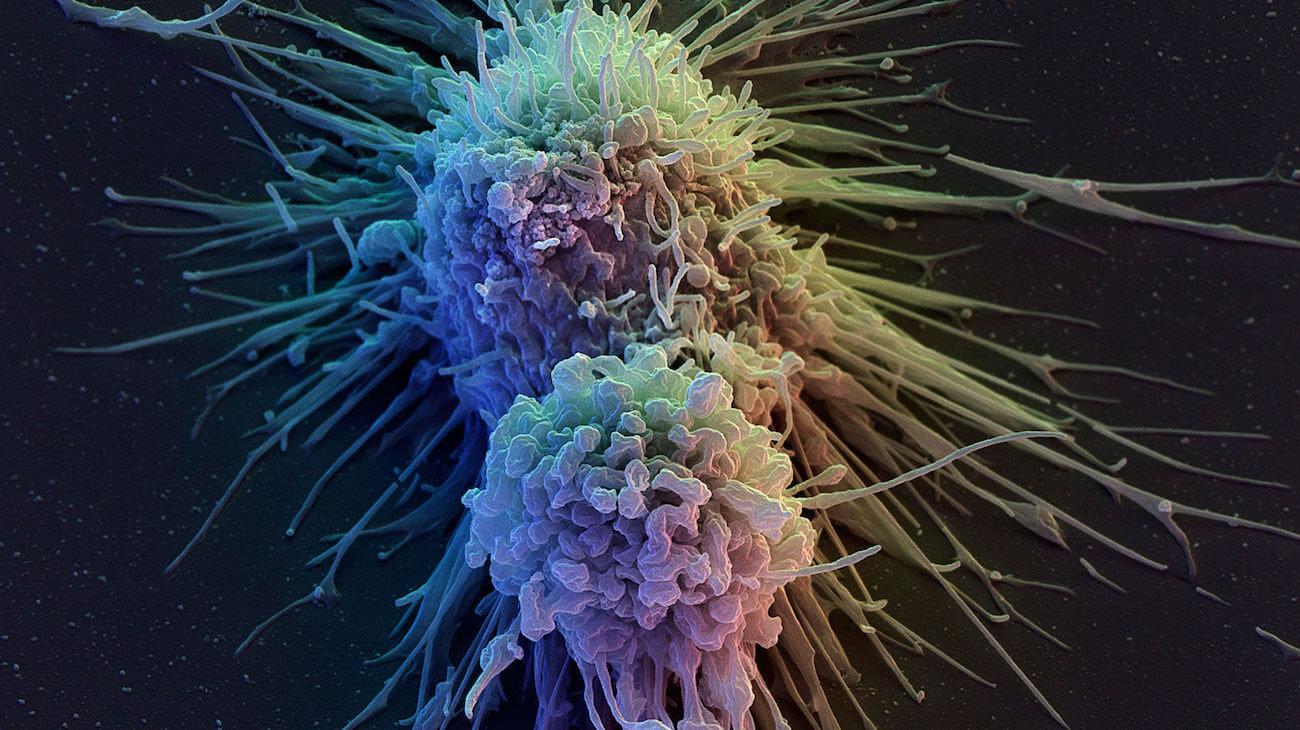 Из клеток кожи сделали клетки иммунитета. И это поможет в лечении рака