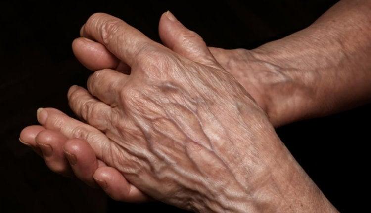Человеческая кожа