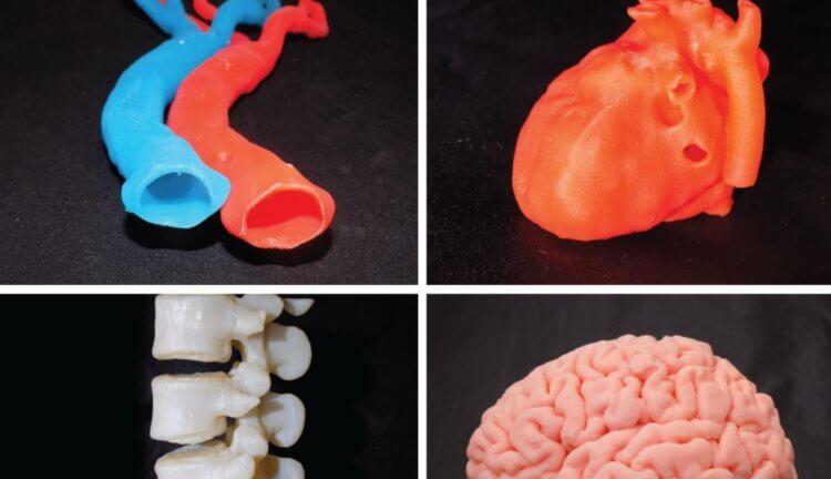 Органы, напечатанные на 3D-принтере