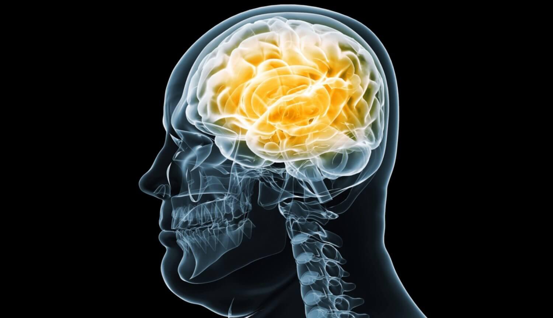 Мозг человека с лишним весом