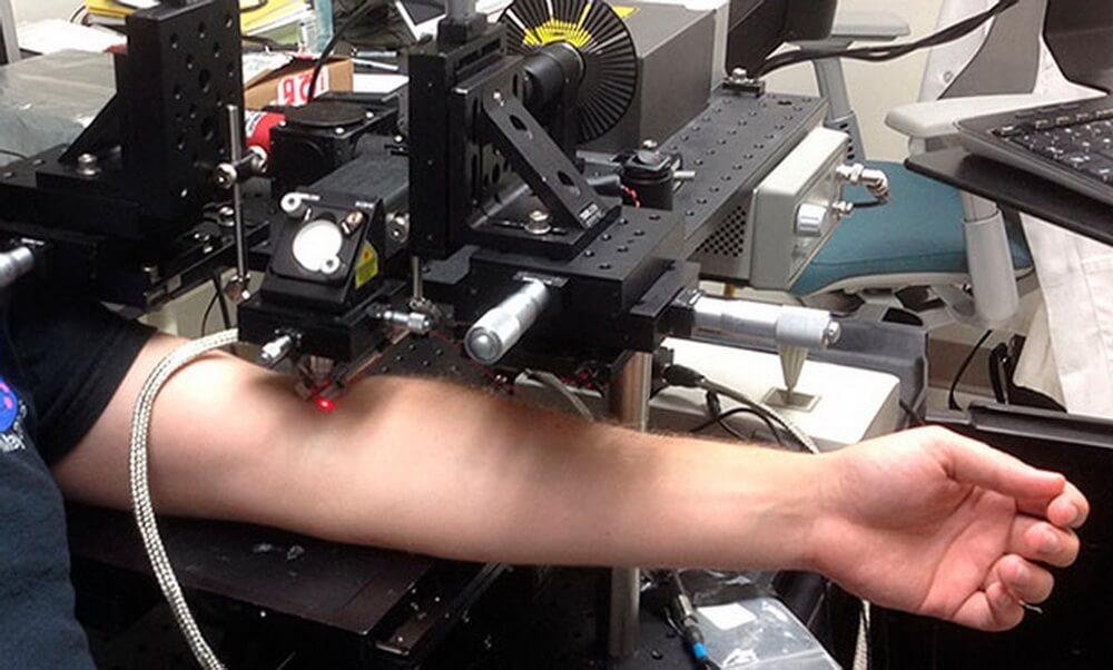 Создан лазер, уничтожающий раковые клетки в крови
