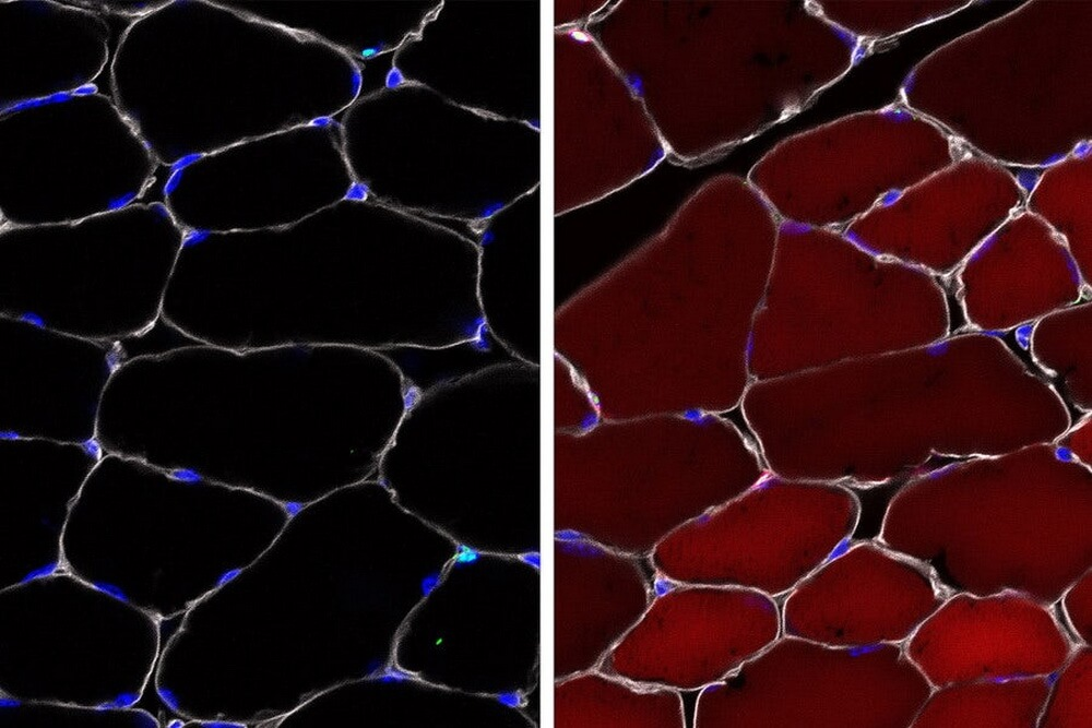 Ученые впервые отредактировали геном стволовых клеток без их извлечения из организма