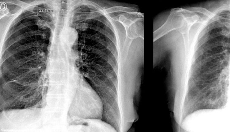 Иглоукалывание стало причиной опасного повреждения легких