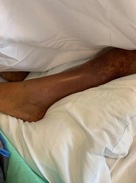 Американка лишилась рук и ног после того, как ее лизнула собака