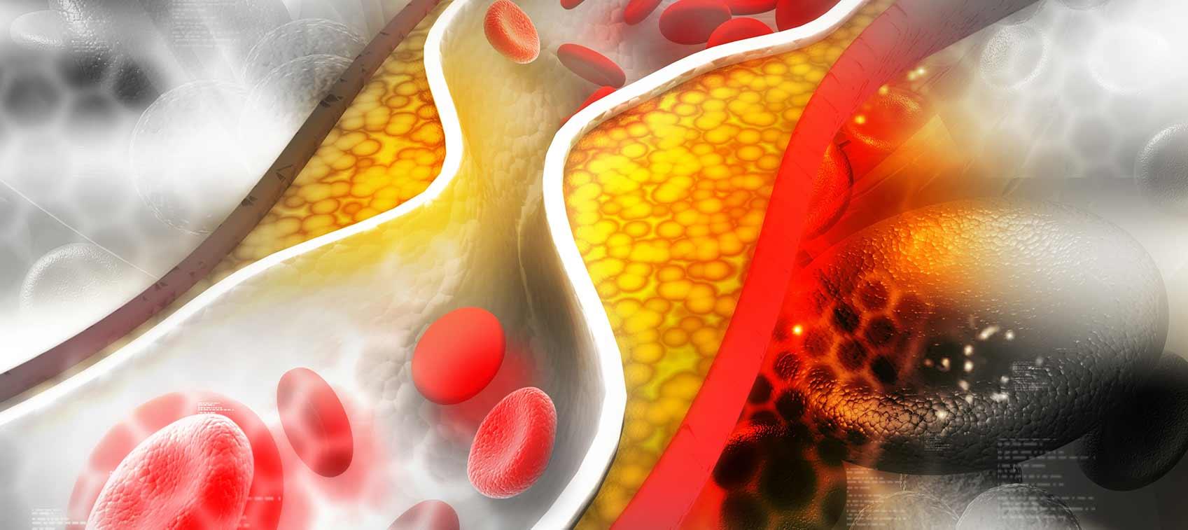 Что такое холестерин и опасен ли он для здоровья? | Hi-News.ru