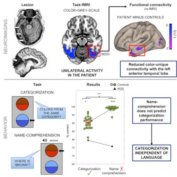 Поражение после инсульта помогло ученым понять, как мозг различает цвета