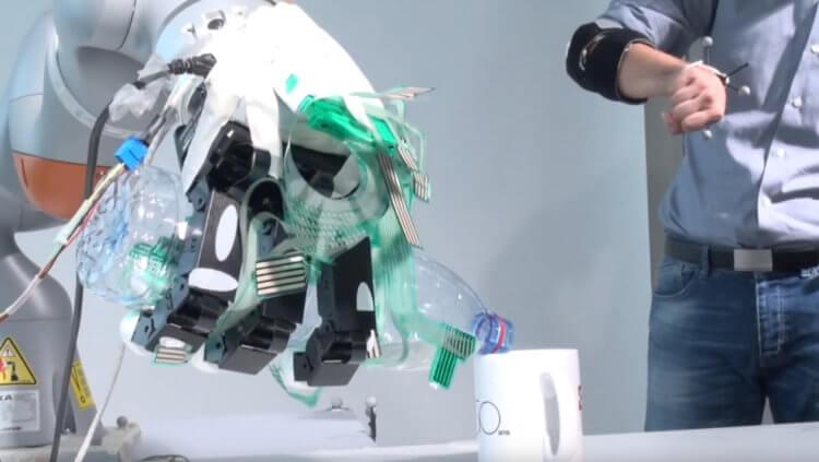 Как искусственный интеллект может улучшить протезы конечностей