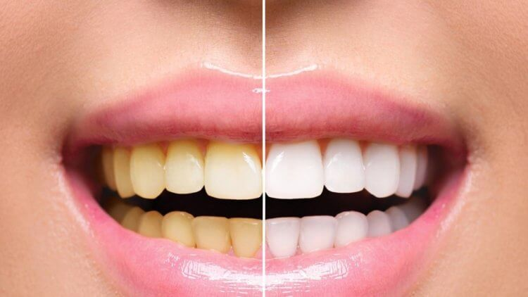 Почему зубы желтеют?