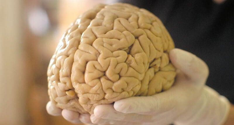 Мозговая ткань способна функционировать вне тела почти месяц