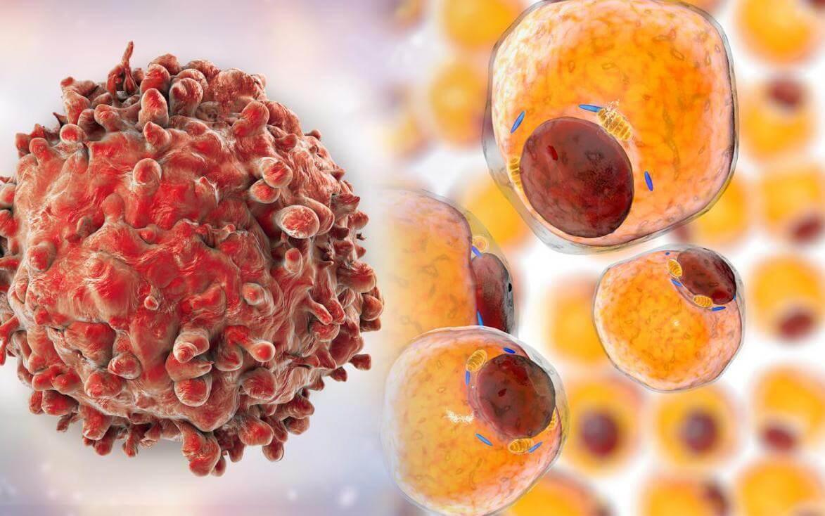 Найдено лекарство, которое убивает рак без вреда для организма