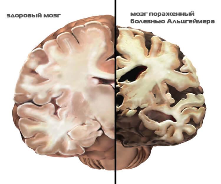 Ученые нашли область мозга, в которой зарождается болезнь Альцгеймера