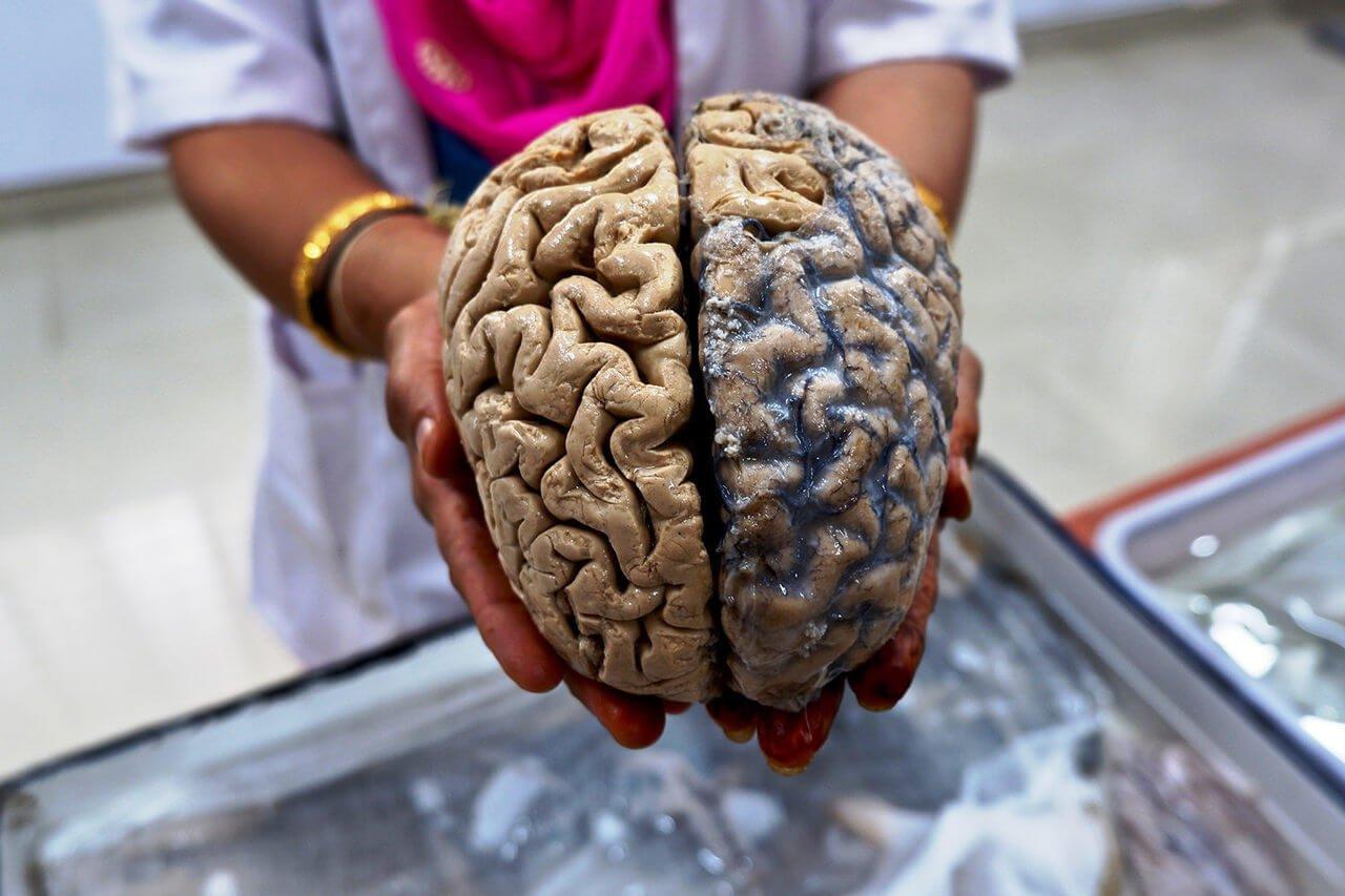 Может ли человеческий мозг не разлагаться тысячи лет?