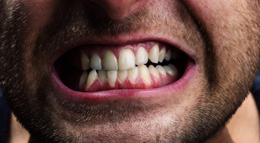 Почему зубы — это не кости?