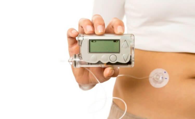 Электронная поджелудочная решит проблему диабетиков с почечной недостаточностью