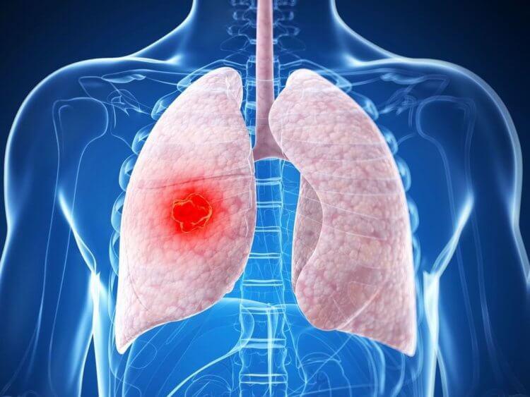 Почему рак легких возникает у некурящих людей и каким он бывает?