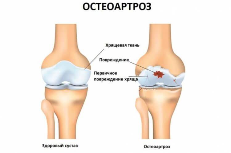 Носовой хрящ поможет восстанавливать суставы при остеоартрозе