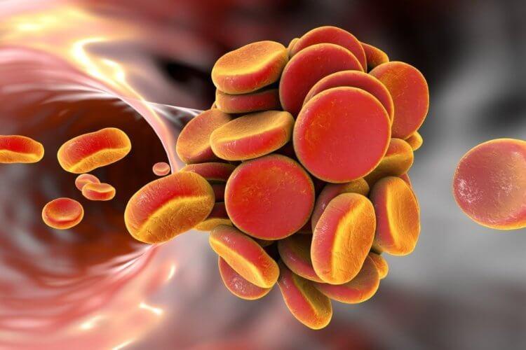 Тромбы в крови будут выявлять лазерным датчиком