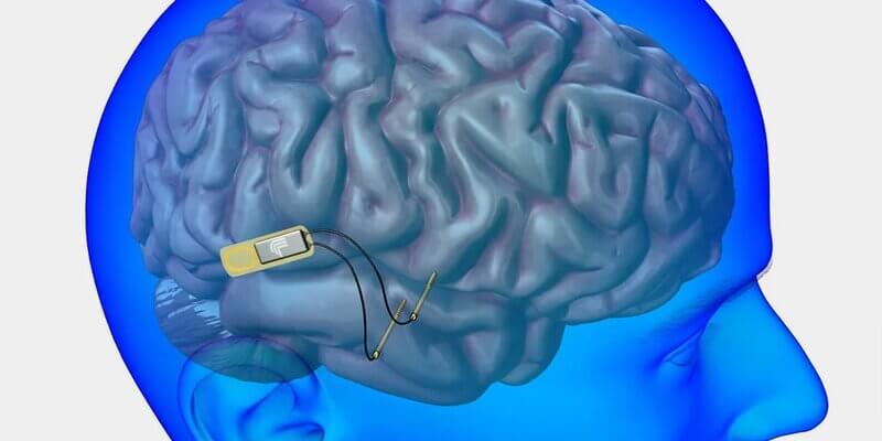 Разряд тока в голову избавляет от депрессии — как и зачем антидепрессанты заменили имплантатом